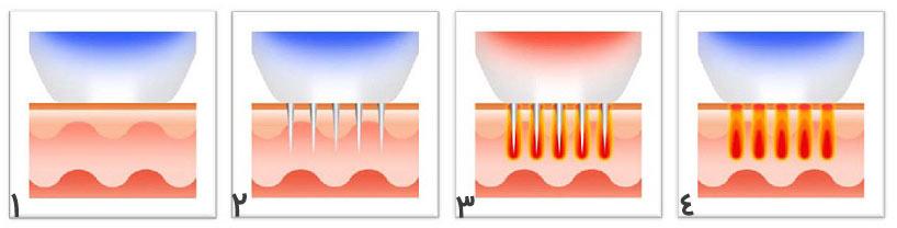 مراحل عملکرد دستگاه آر اف فرکشنال (RF fractional)