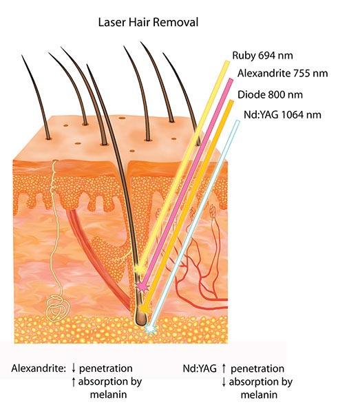 ميزان نفوذ لیزر موهای زائد در پوست